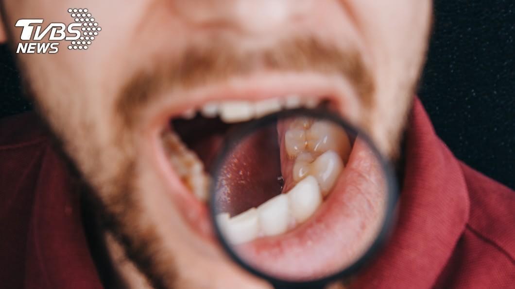 (示意圖/TVBS) 男嘴破2個月沒好 醫一看搖頭嘆:末期了