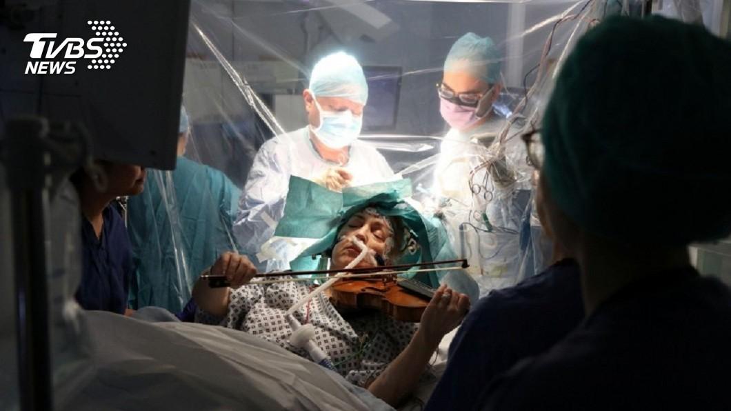 英國1名小提琴日前動開顱手術,手術過程中她拉著小提琴演奏歌曲。(圖/達志影像路透社) 驚奇!英小提琴手動腦部手術 意識清醒「邊開腦邊演奏」