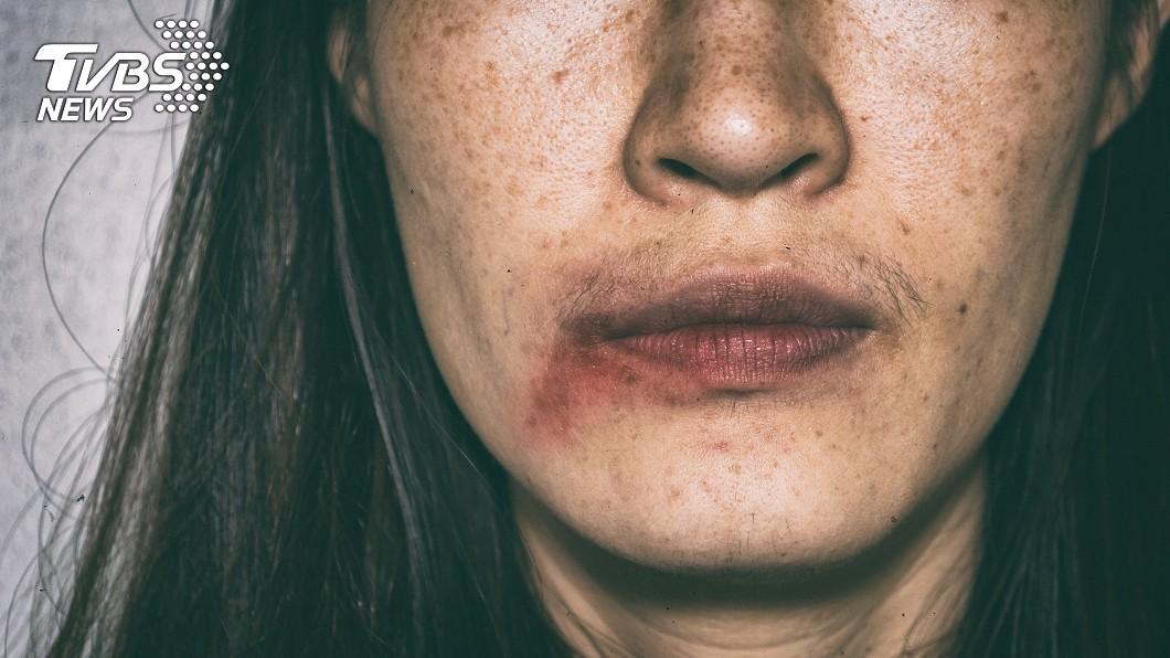 (示意圖/TVBS) 人妻骨折毀容濃妝遮血跡 醫逼問真相心碎:想抱妳一起哭