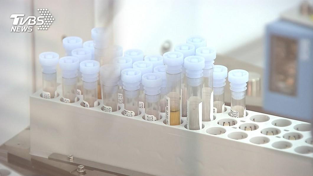 瑞德西韋台臨床試驗 張上淳:3病患退燒快