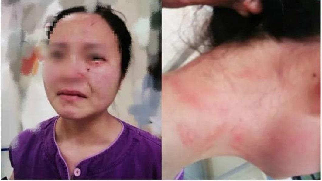廣州1名護理師要幫1名確診新冠肺炎的外籍病患抽血時,遭對方一陣狂毆還咬傷臉部。(圖/翻攝自京報網) 外籍新冠肺炎患者拒抽血落跑 推倒護理師狂毆咬她臉