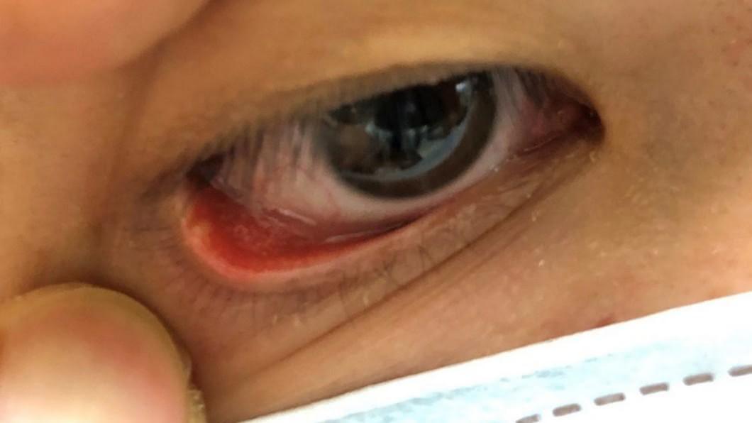 圖/書田診所提供 常熬夜長針眼熱敷卻更腫痛? 醫解釋:針眼分2種