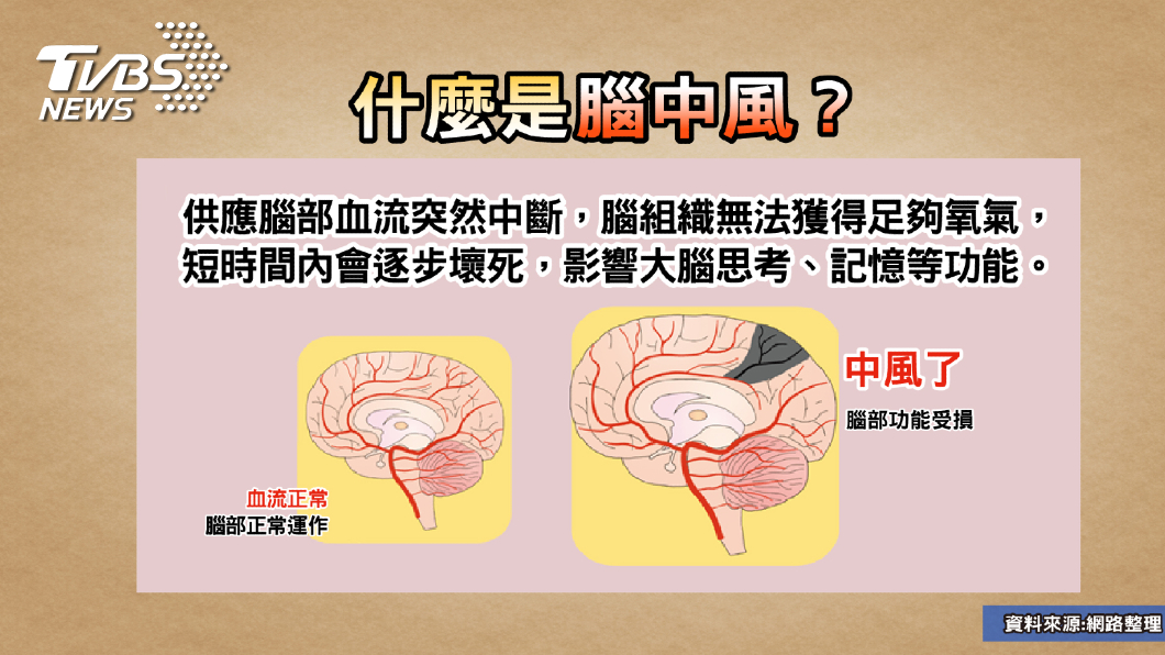 圖/TVBS提供 運動撞頭竟語無倫次?!專家教你揪出「大腦未爆彈」