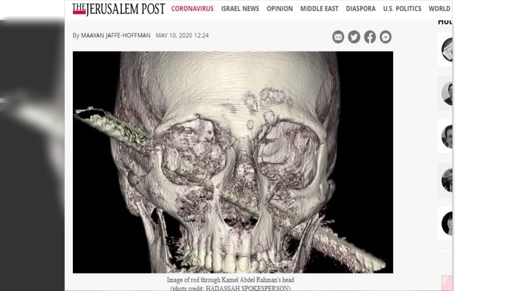 男子臉部遭鐵棍貫穿。(圖/翻攝自《耶路撒冷郵報》) 驚!男跌倒重摔:完全不痛 送醫才知「臉被鐵棍貫穿」