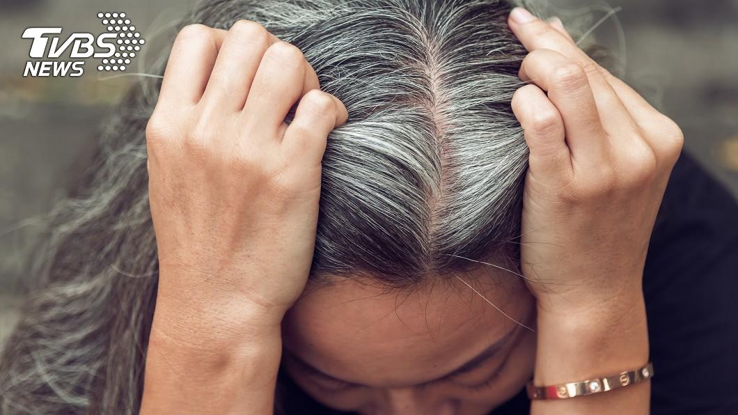 不良生活習慣會加速頭髮老化。(示意圖/shutterstock 達志影像) 白髮元凶找到了!改善5NG習慣 逆轉養出烏黑髮