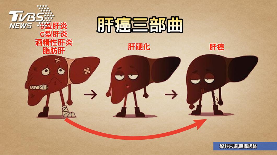 圖/TVBS提供 顏清標換肝恐因這習慣 出現這些症狀 小心肝病上身!
