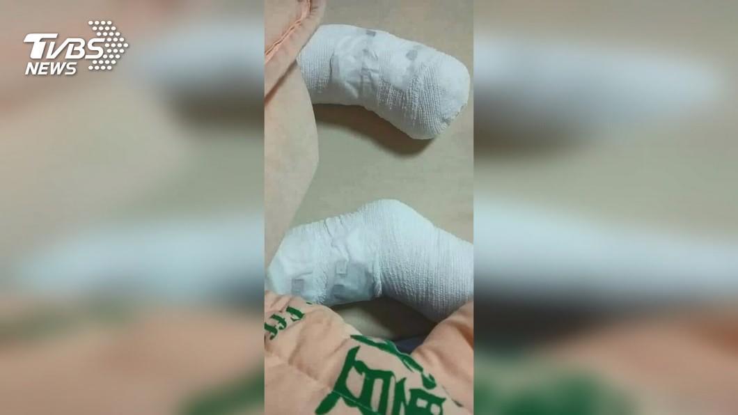 台南市一名4歲女童疑遭繼父葉姓男子管教時以熱水燙傷。(圖/TVBS) 台南4歲女童遭虐雙腳燙傷潰爛 法院裁定繼父收押
