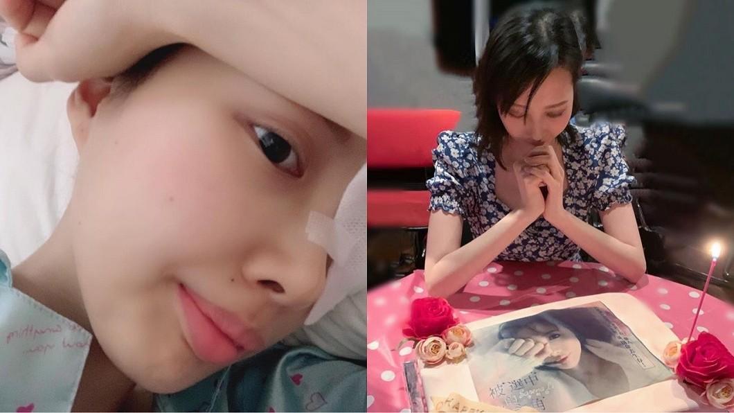 Sarena因罹癌出現顏面失調、眼睛闔不上等症狀。(圖/翻攝自Sarena Li李明蔚臉書) 癌細胞擴散眼都張不開!女星「停止治療」生命倒數中