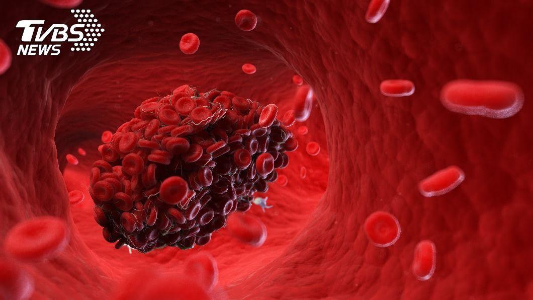 新冠病毒致死病人遺體內出現血栓。(示意圖/TVBS) 新冠肺炎致死病患 專家:幾乎每個臟器都出現血栓