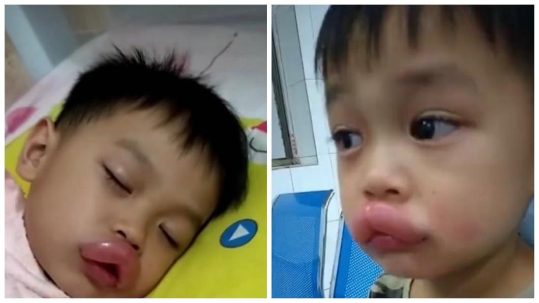 廣西1名4歲男童吃了自家的葡萄之後,上嘴脣瞬間腫脹成嘟嘟嘴。(圖/翻攝自微博) 吃自家種的葡萄過敏 男童瞬間腫成鴨子嘴