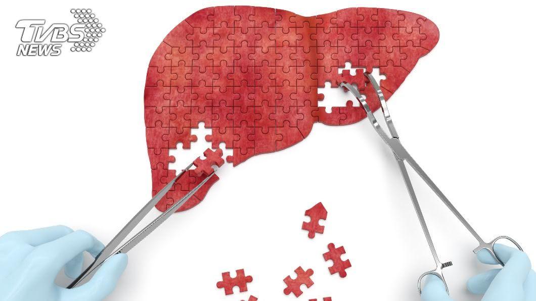 資料顯示,至少有25%受測者患有脂肪肝。(示意圖/shutterstock達志影像) 小心脂肪肝變癌症 「地中海型飲食」加3招有效改善