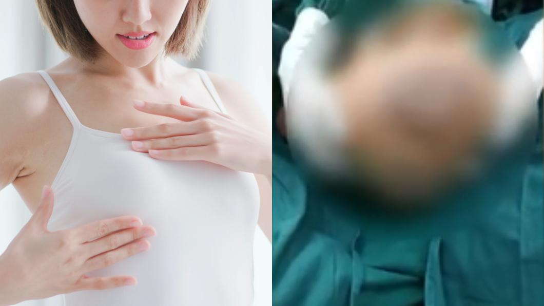 一般來說女性乳房發育的年齡介於7歲至14歲左右。(圖/(左)shutterstock達志影像、(右)翻攝自微兔視頻) 12歲少女乳房「暴風成長」…媽媽嚇壞急送醫
