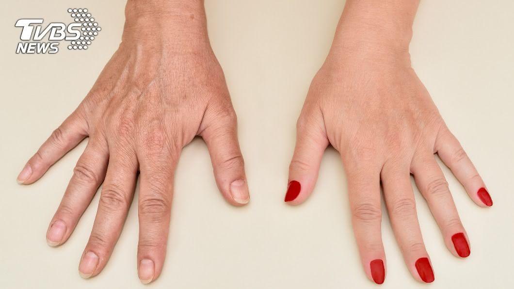 手部保養得宜,直接影響視覺年齡。(示意圖/shutterstock 達志影像) 粗黑雙手羞見人!3大「顯老」症狀需仔細保養