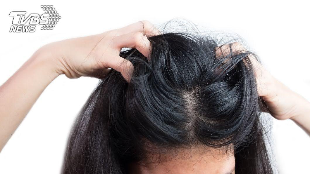 女性掉髮原因多。(示意圖/shutterstock達志影像) 拯救脫髮危機! 姐妹不得不知的護髮妙招