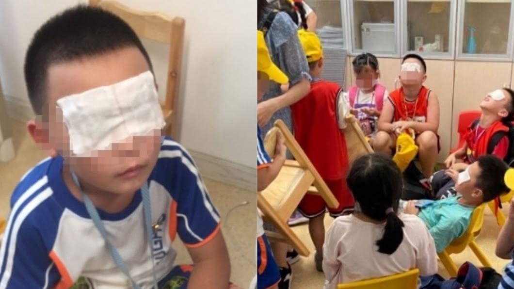 大陸浙江一間小學的電工誤觸紫外線燈開關,導致130名學生雙眼灼傷。(圖/翻攝自紅星新聞) 「紫外線燈」狂照5小時 130學生眼睛灼傷、角膜脫落