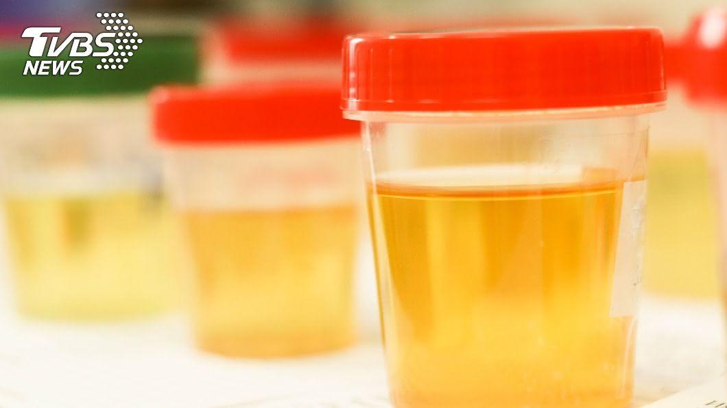 有男子靠「尿液」養生。(示意圖/shutterstock 達志影像) 靠「小便」養出6塊肌?男子每天喝大讚:能量飲料