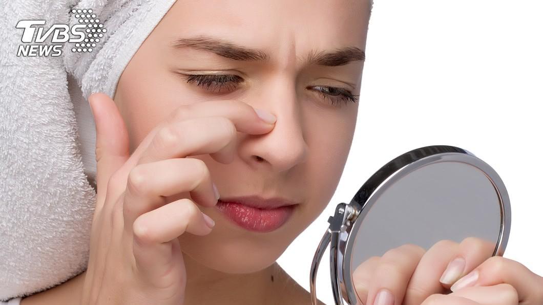 (示意圖/shutterstock達志影像) 19歲女擠鼻子痘痘…細菌竄顱腦險喪命 醫揭恐怖後果
