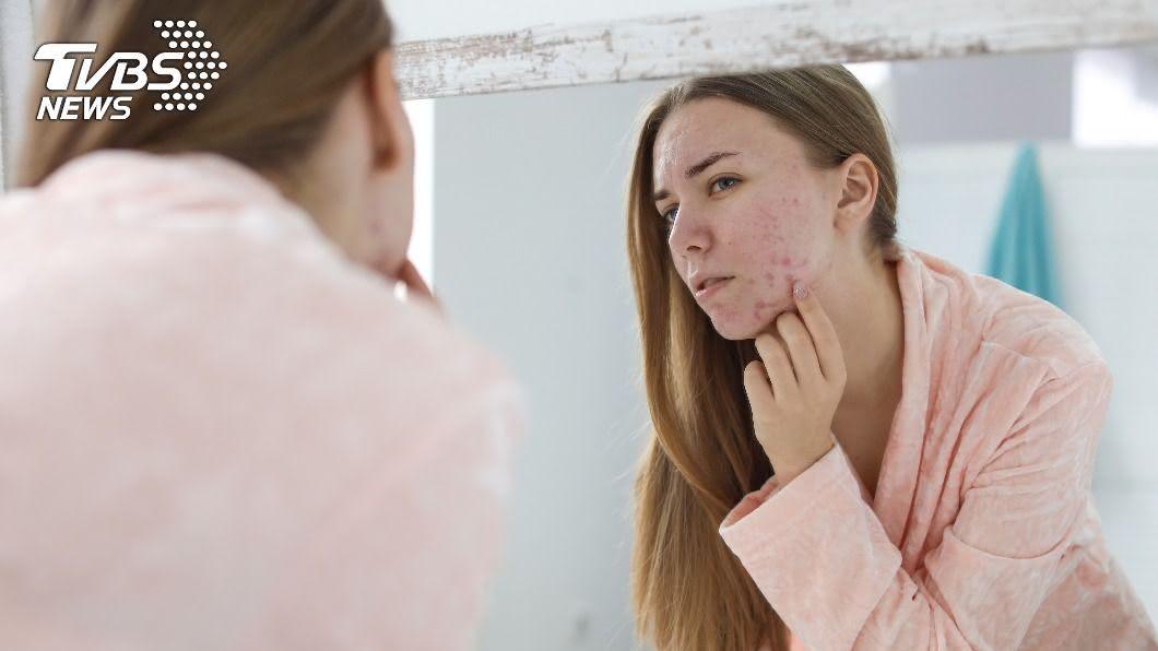 許多女性發現卸妝完隔天竟大冒痘。(示意圖/shutterstock達志影像) 卸妝完仍大爆痘 4點快戒掉恢復平滑肌有感