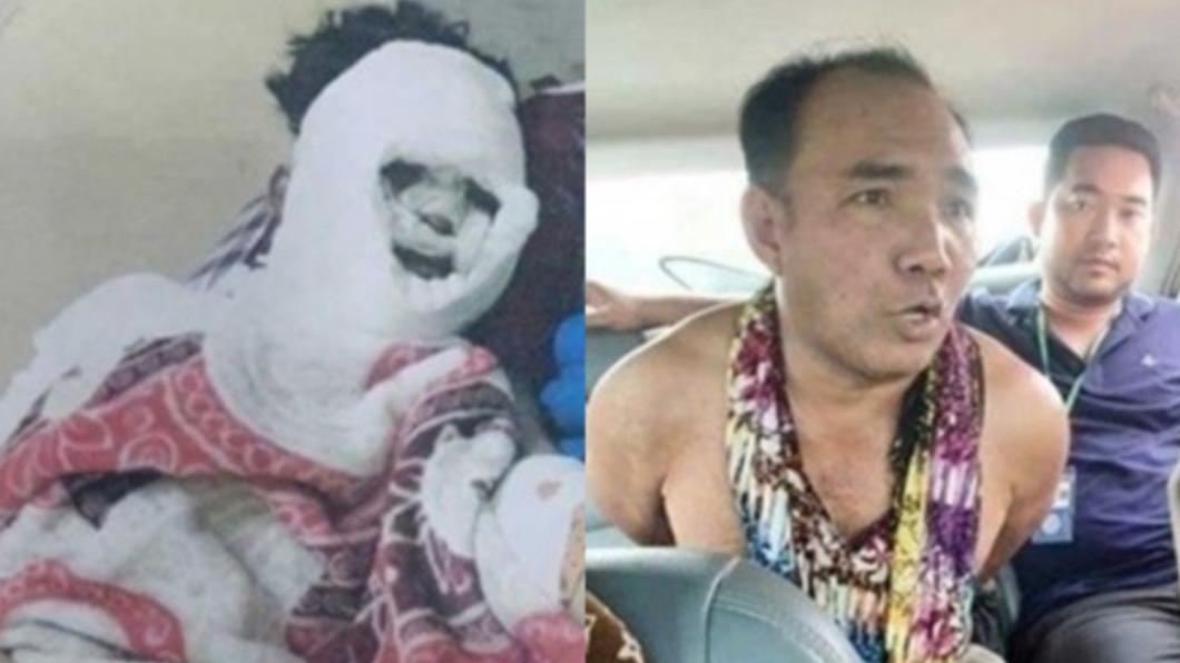 男子因不滿女友提分手憤而將其毀容及斷掌,導致終生殘疾。(圖/翻攝自Cambodia National Police) 驚悚!不滿女友提分手 恐怖情人持刀剁掌潑酸毀容