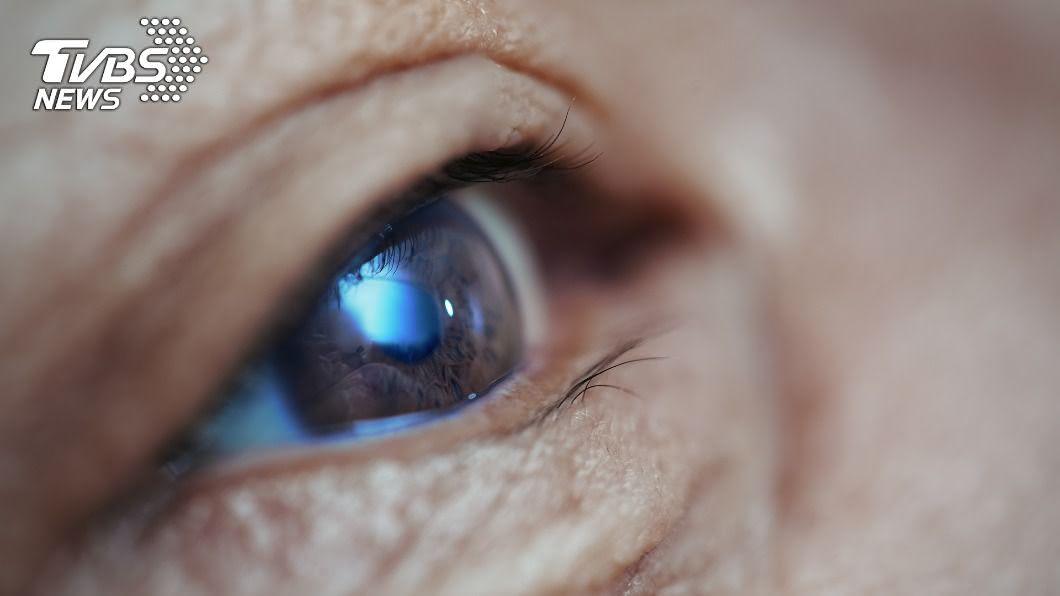 (示意圖/shutterstock 達志影像) 左眼常常見白影誤以為「撞鬼」 醫診斷腦部腫瘤造成