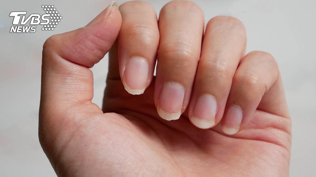 示意圖/shutterstock達志影像 從指甲看健康!月牙不明顯代表生病了?醫曝此層皮更重要
