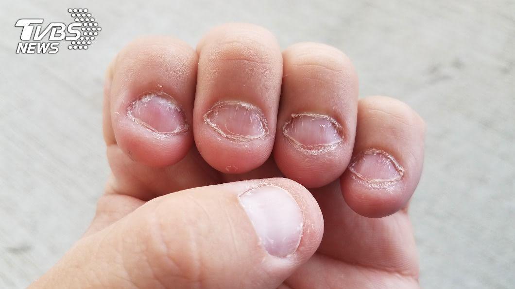 指甲健康與否,皮膚科醫師提醒大家從2部位觀察。(示意圖/shutterstock達志影像) 指甲太軟要「補鈣」? 醫曝關鍵:2大部位更重要