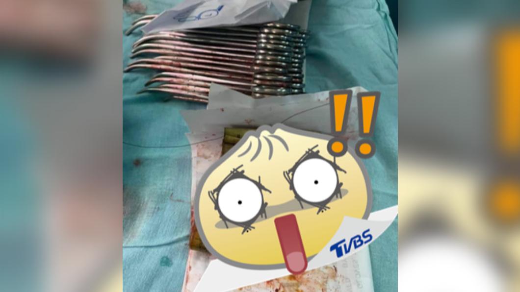 男子將4卷鈔票吞下肚,導致劇烈疼痛。(圖/翻攝自الجزيرة - مصر臉書) 百寶袋?男肚痛急開刀 竟挖出4卷價值1.2萬鈔票