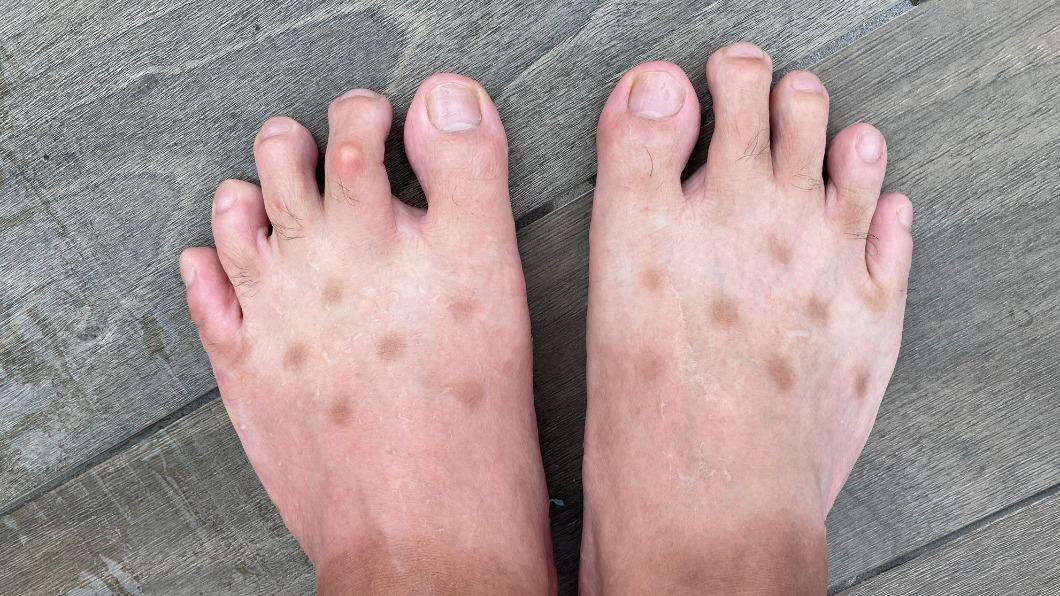 日本網友腳上突然出現褐色斑點。(圖/翻攝自@kenrauheru Twitter) 染怪病?腳背突現神秘褐斑點 網哭:救不回了