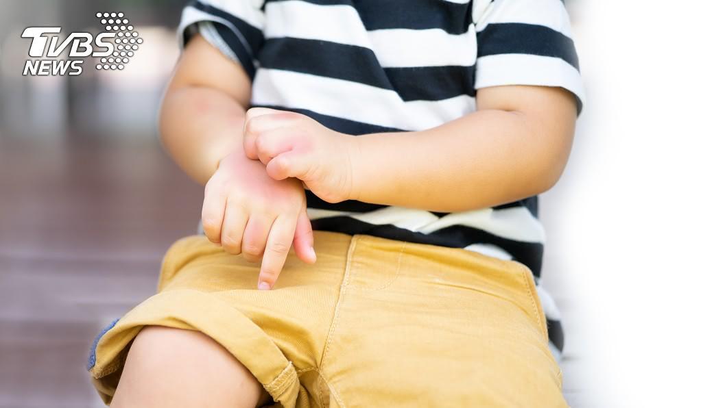 (示意圖/shutterstock達志影像) 全身爆癢狂抓!1歲童指縫藏「蟲穴道」 醫一看秒往後退
