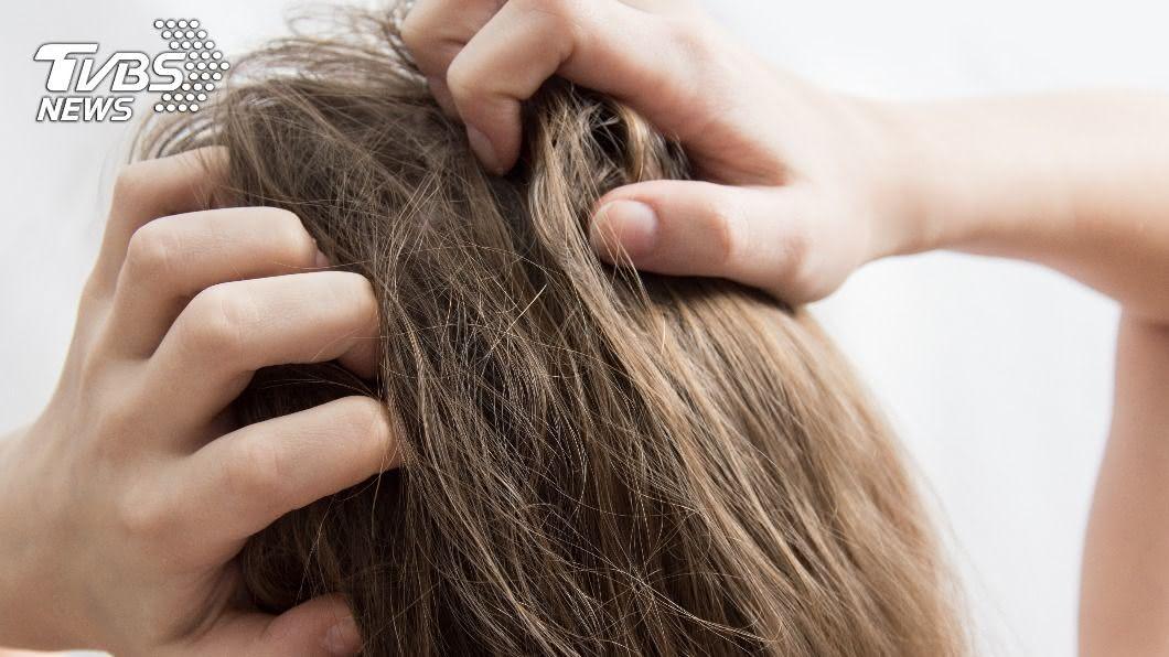 醫師警告頭皮癢別抓。(示意圖/shutterstock 達志影像) 頭皮癢別再抓了!恐是濕疹惹禍 改善、保養方法大公開