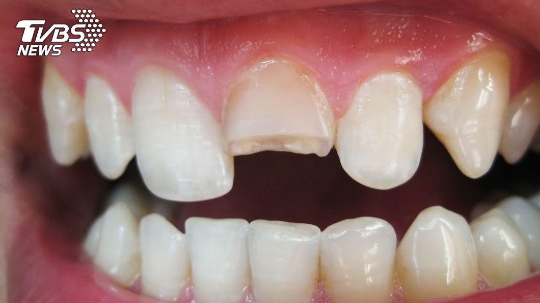 斷裂的牙齒碎片無法黏回原位。(示意圖/shutterstock達志影像) 牙齒缺一小角黏不回去? 醫教3招預防斷裂