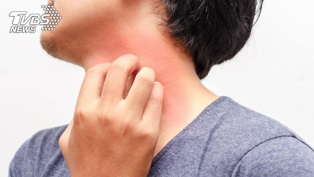 異位性皮膚炎病患總擔心病情時好時壞。(示意圖/shutterstock達志影像) 乾癬、濕疹能不藥而癒? 避開「禁忌食物」輕鬆根治