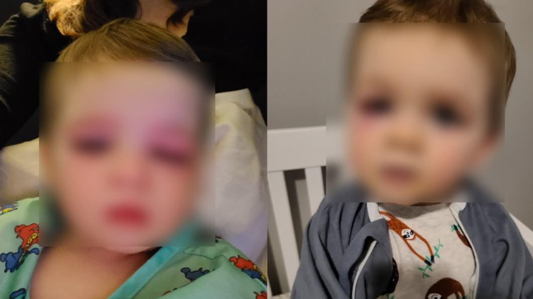 美國一名作家分享兒子差點失明的事故。(圖/翻攝自Eden Strong臉書) 洗澡玩具恐致失明!2歲童遭「噴水入眼」紅腫半張臉