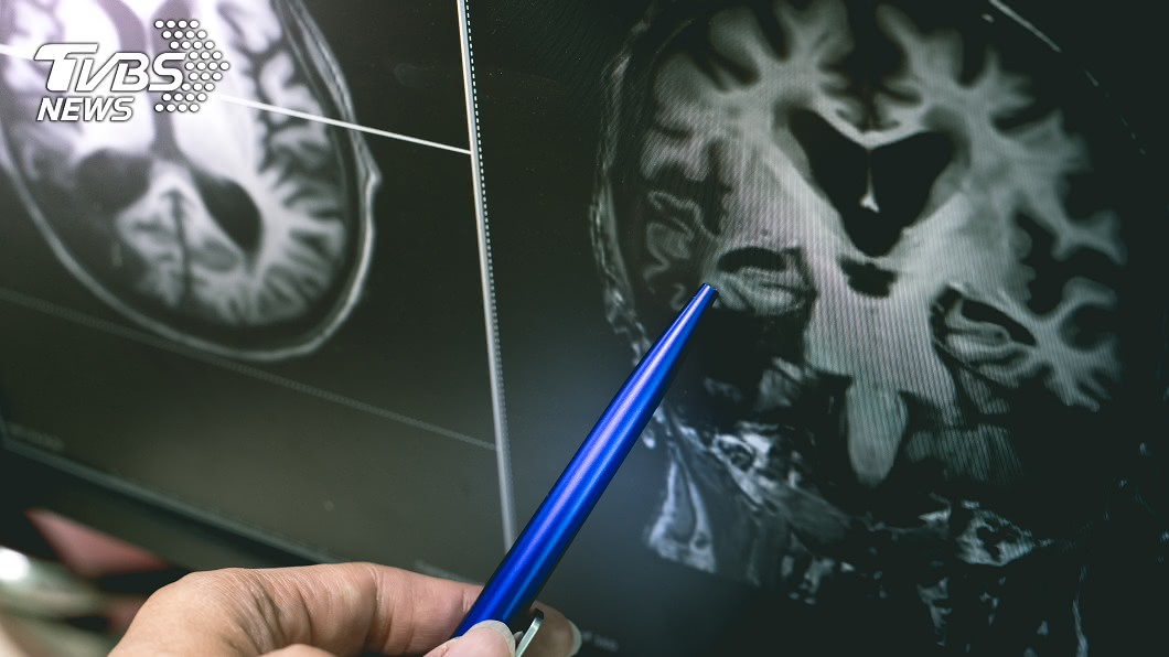 孩童的腦卻像極了80歲老人。(示意圖/shutterstock達志影像) 遭虐全身傷!高雄3歲童「腦萎縮成80歲」 父母不養了