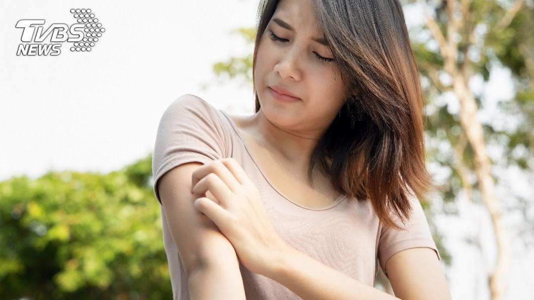 醫師指出,不同部位的搔癢需要開立不同藥膏治療。(示意圖/shutterstock達志影像) 皮膚搔癢可能是癌? 醫揭6警訊:藥膏不該這樣擦