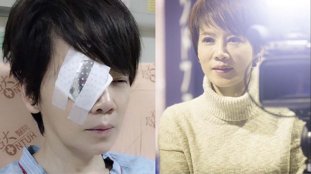 陳雅琳先前因視網膜剝離,右眼幾乎失明。(圖/翻攝自陳雅琳主播臉書) 「眼睛像玻璃碎掉!」主播失明苦撐 爆醫破口大罵