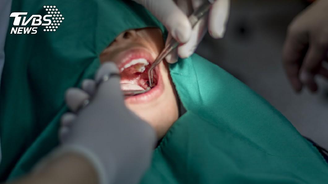 示意圖/shutterstock 達志影像 快訊/北市牙醫確診! 篩檢146人又增2助理染疫