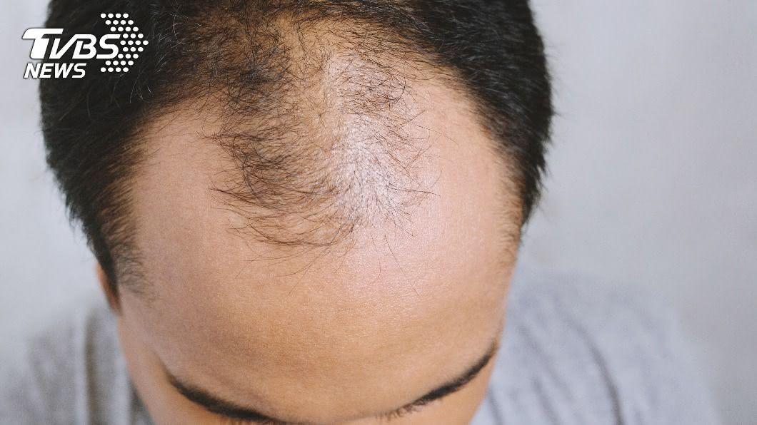 英國一名青少年因禿頭遭檢舉。(示意圖/Shutterstock達志影像) 15歲少年禿頭又掉髮 同學家長怒檢舉:根本40歲!