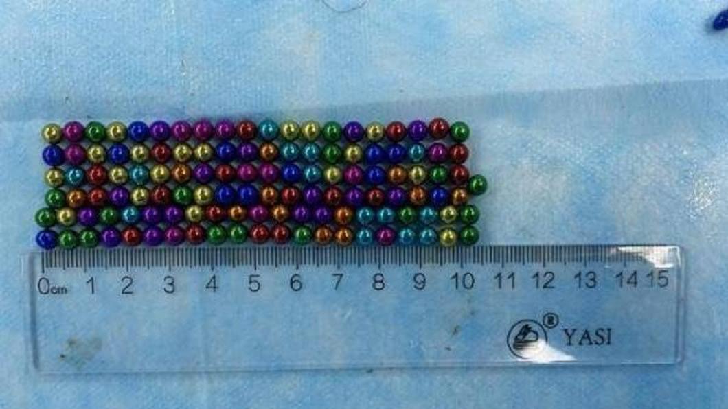 一名5歲男童日前不慎把123顆磁力珠吞下肚。(圖/翻攝自搜狐新聞) 5歲童誤吞123顆磁力珠 醫花4.5小時分割取出
