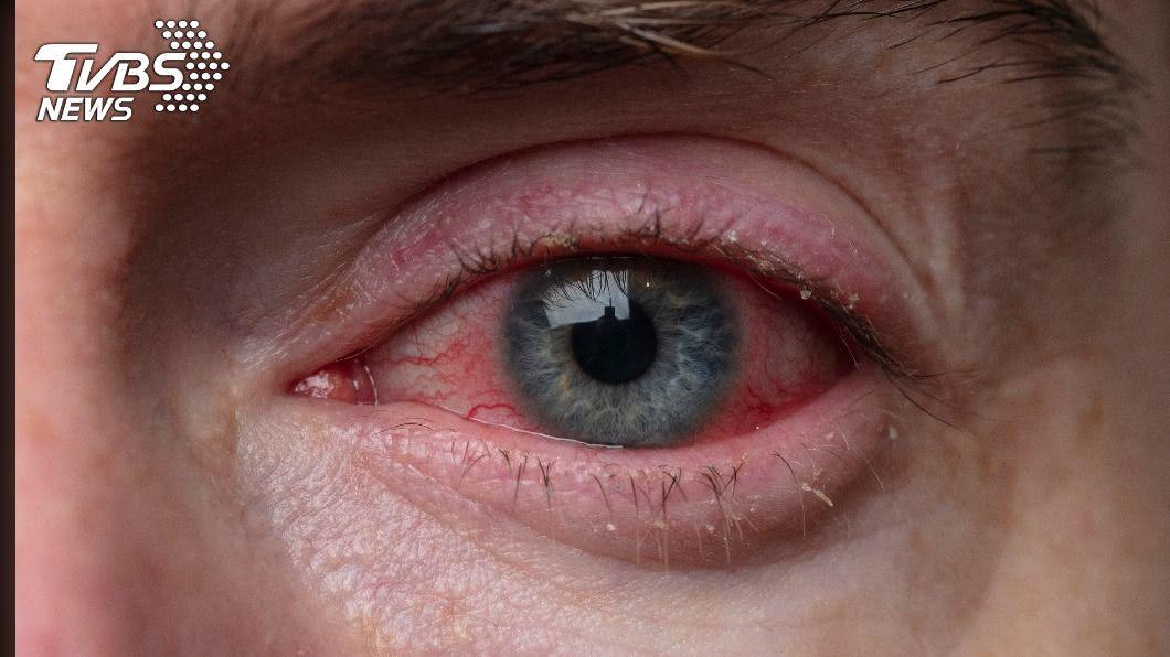 千萬別輕忽眼睛紅腫、單眼外凸,應盡速就醫。(示意圖/shutterstock達志影像) 視力突變!眼癌別錯當長針眼 2症狀速就醫