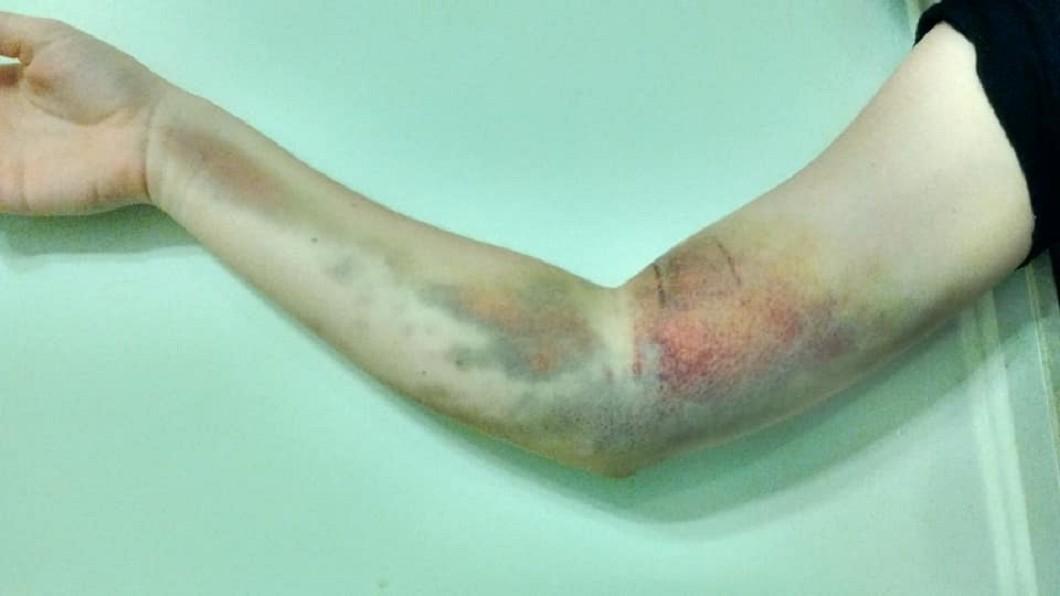 女子因捐血而賠上右手。(圖/翻攝自當事人推特) 捐血卻賠了手!17歲少女遭「插錯血管」罹病裝支架