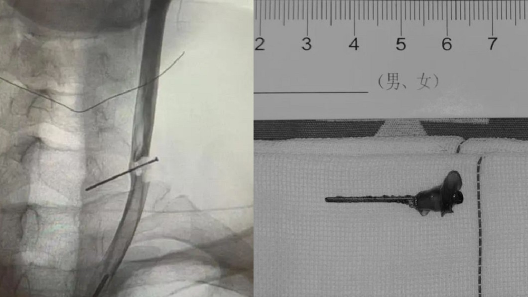 一根3公分鐵釘刺進木工的頸動脈長達10年。(經變色處理,合成圖/翻攝自錢江晚報) 男眼前發黑急就醫 驚見「3公分鐵釘」穿頸動脈10年