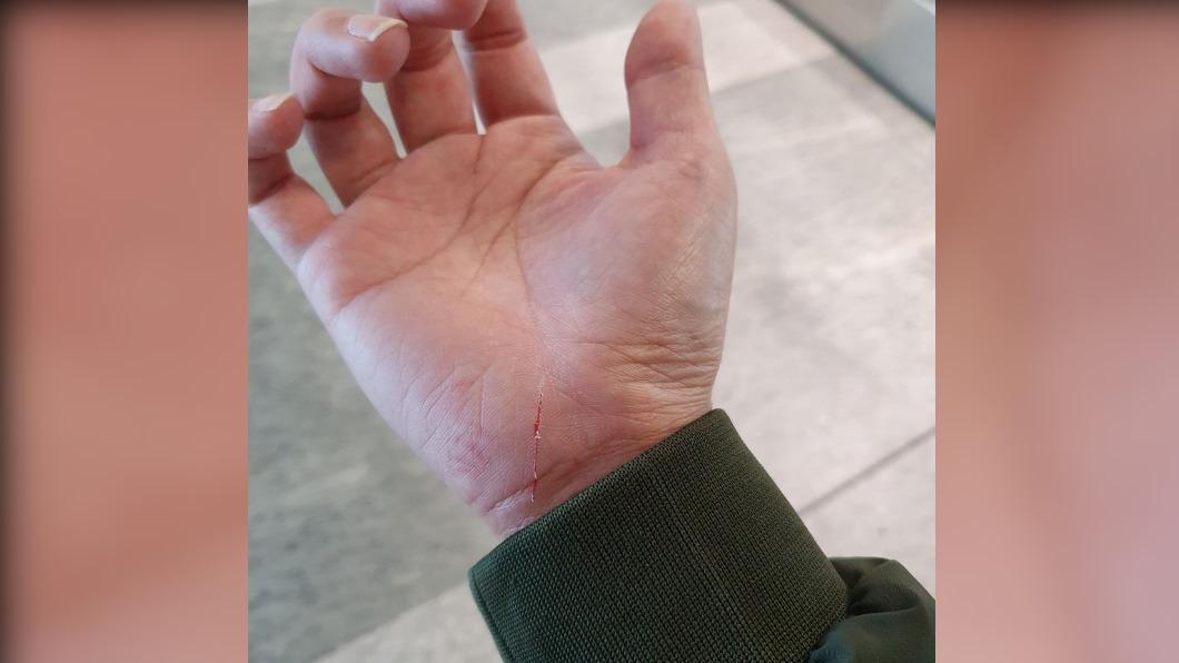民眾手部遭割傷。(圖/PTT網友授權提供) 男搭機捷手扶梯遭「藏針」割傷見血 台鐵急回應