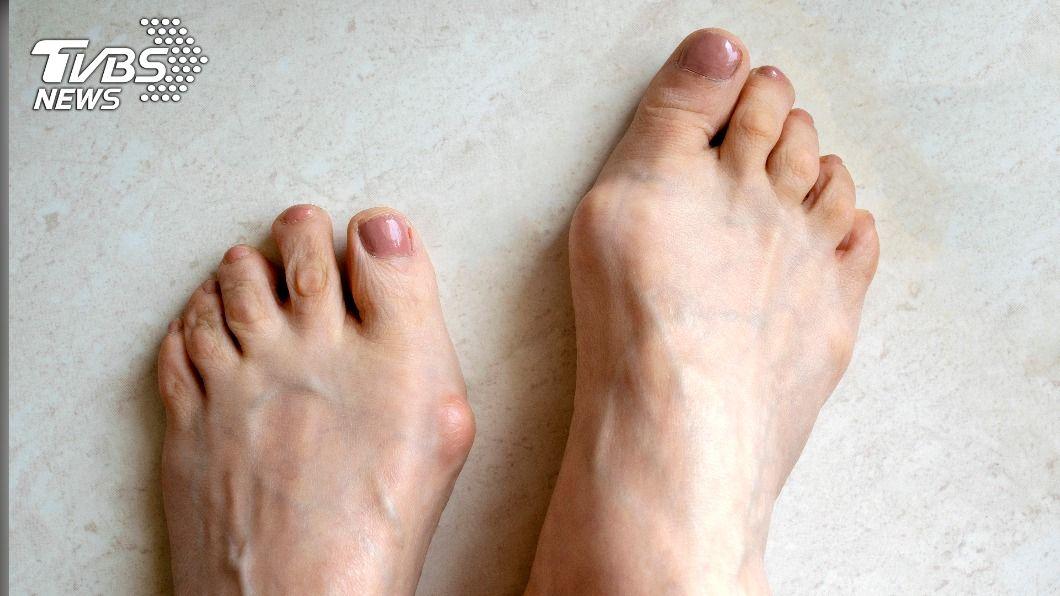 拇趾外翻不只腳趾會疼痛,全身都會受影響。(示意圖/shutterstock達志影像) 拇趾外翻嚴重恐骨骼歪斜 改善3不良穿鞋習慣助預防