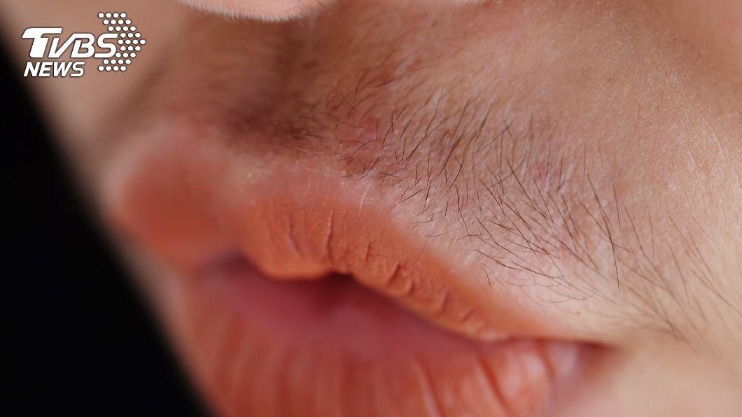 孩童誤食生髮水罹患多毛症。(示意圖/shutterstock 達志影像) 20童胃痛服藥「全身炸毛」 終生難癒家長氣壞