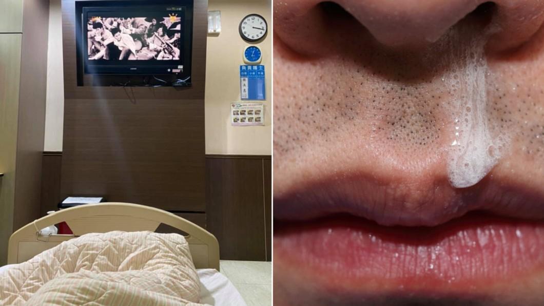 男子撞到頭後「鼻水狂流」,最後住院治療險送命。(合成圖/翻攝自「爆廢1公社」、shutterstock 達志影像) 男不慎撞到頭「鼻水狂流」 醫一查:很多人這樣死掉