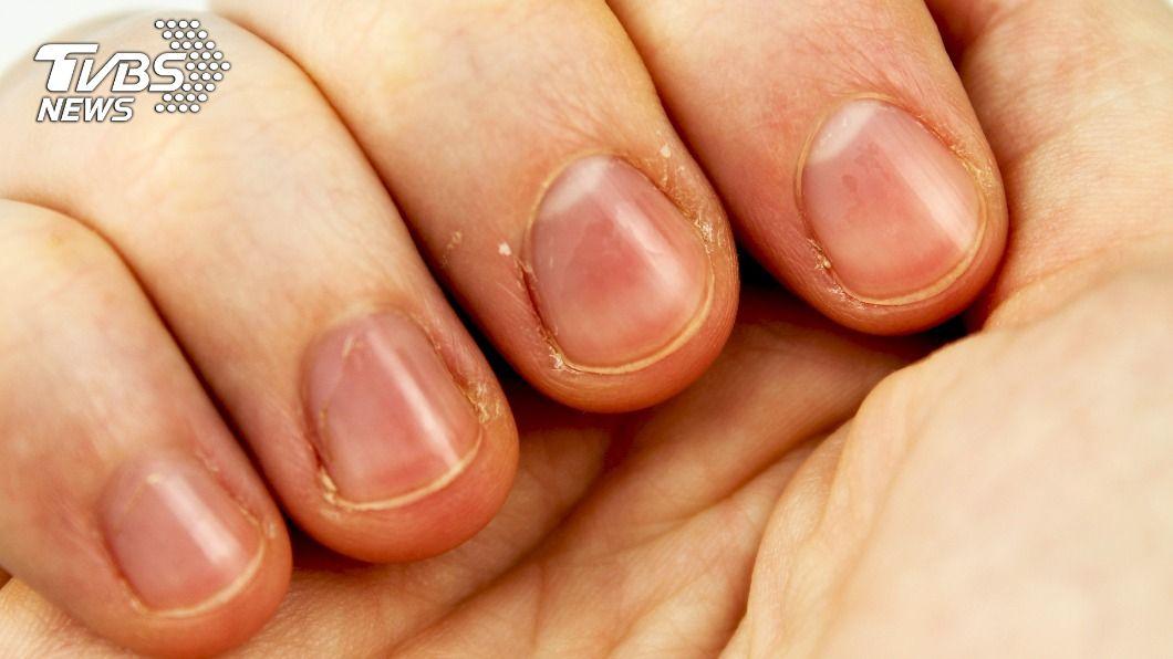 天氣乾冷,不少人手指邊緣會長出許多脫皮的小肉刺。(示意圖/shutterstock 達志影像) 手指脫皮別亂撕!小心感染成「香腸手」 多一動作減傷害