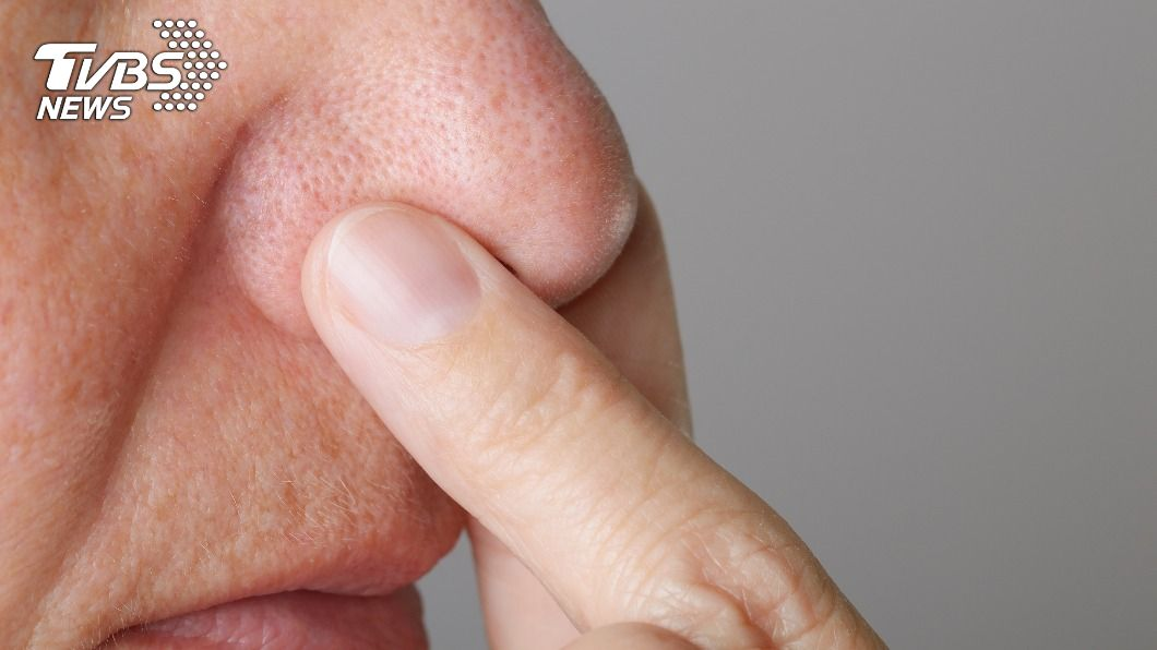 (示意圖/shutterstock 達志影像) 染疫後遺症「嗅覺倒錯」 英醫師:部分患者聞到魚腥味
