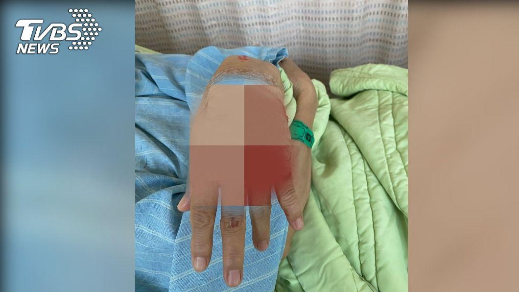 婦女於動物園吃麵包遭台灣獼猴攻擊搶食。(圖/中央社) 壽山動物園吃麵包遭數隻獼猴搶食 婦左手伸指肌腱斷裂