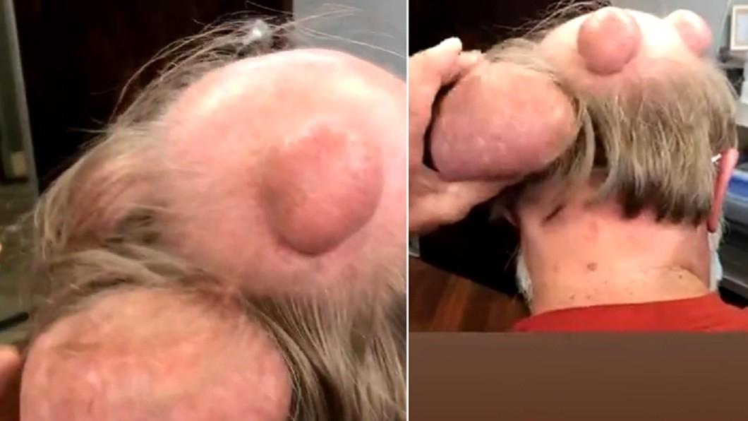 巨大粉瘤養20年。(圖/翻攝自推特) 20年粉瘤一擠「蛋沙拉膿液」濃稠噴出 15秒全錄下